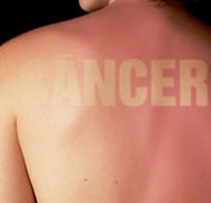 cáncer de piel no melanoma