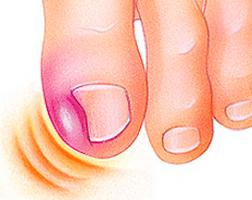 cirugía de uñas